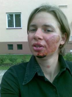 Po týdnu potírání tváře odvarem z chlapice,<br>jsem měla tvářičku jak dětskou prdelku...