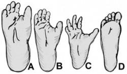 Plosky nohy vybraných vyšších nonhumánních primátů a člověka:<br>A - Gorila pobřežní, B - Gorila horská, C - Šimpanz učenlivý,<br>D - Člověk<br>Kreslil Broňa Kračmar